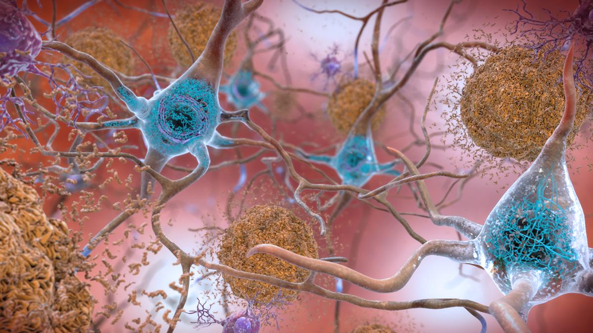 drug prevents amyloid plaque